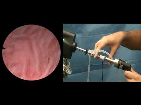 Kaj klistir pred ultrazvočno prostate