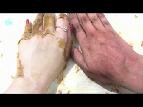 Hydrogen peroxide at amonya skin whitening review