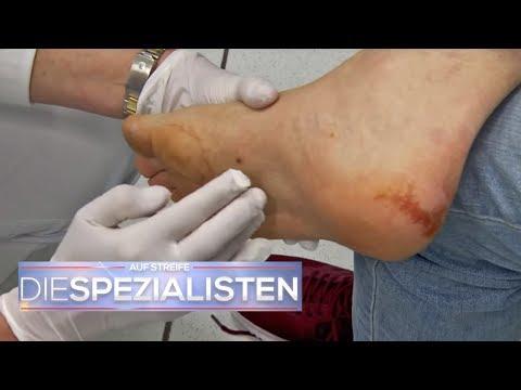 Die Weisen der Behandlung des Kernes auf dem Daumen des Beines