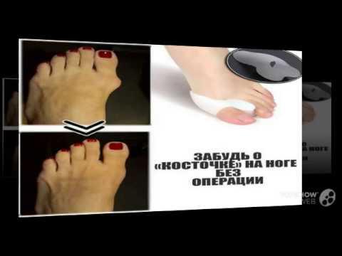 Причины вальгусной деформации большого пальца стопы