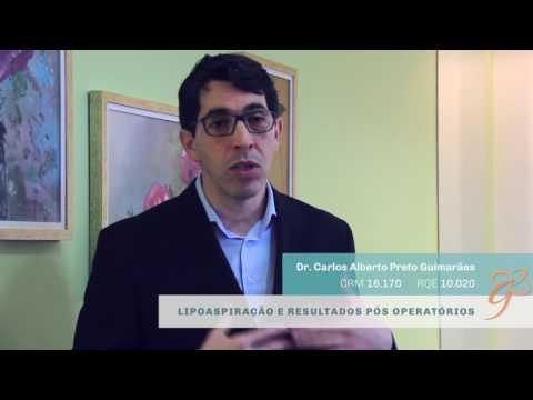 Lipoaspiração e Resultados - Vídeos | Clínica GrafGuimarães