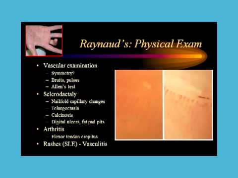 Video Dr. Robert Valente: Cold fingers and Raynaud's  Phenomenon