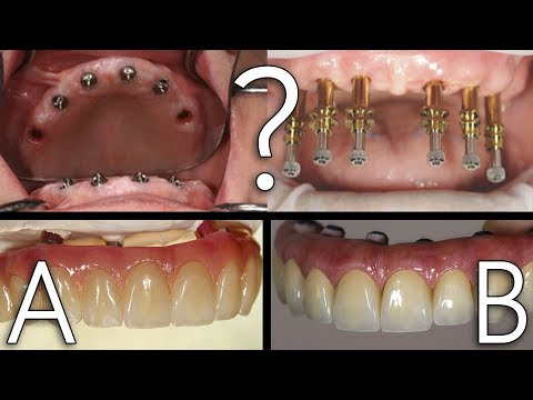 Which Would You Choose - A or B? | Full Mouth Prosthesis
