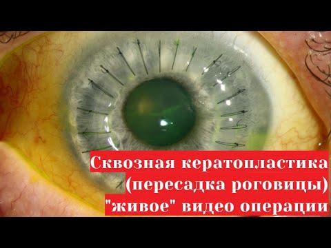 Если повышенное глазное давление что делать