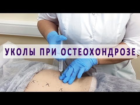 Лечение остеохондроза в чите