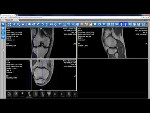 Download link Youtube: New HTML5 Zero Footprint DICOM ...