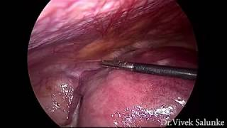 Laparoscopic cerclage and 16 weeks pregnant uterus