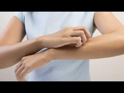 Как лечить укусы клопов постельных у человека в домашних условиях быстро