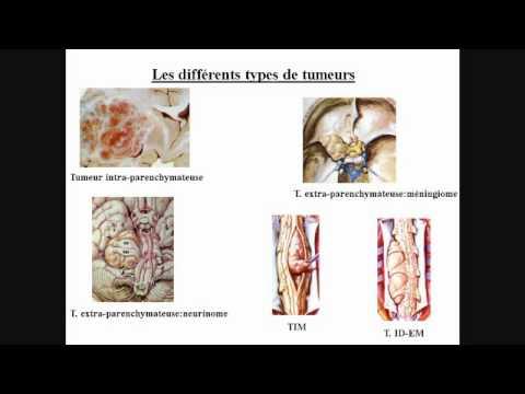 Shiatsu contre lhypertension