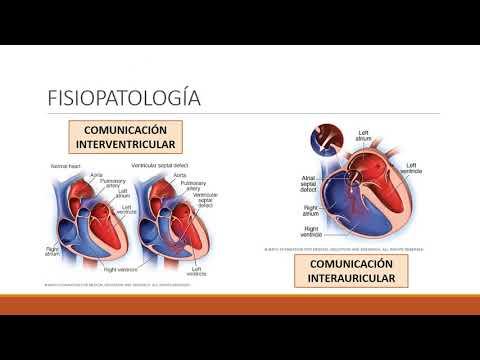 Morte per la causa di ipertensione portale