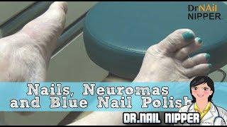 Nails, Neuromas And Blue Nail Polish