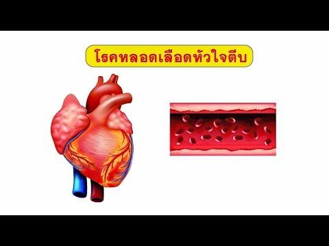 โภชนาการที่เหมาะสมมีเส้นเลือดขอด