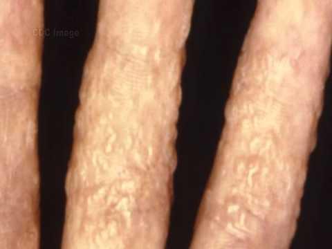Gribok der Nägel auf den Beinen das Chlor