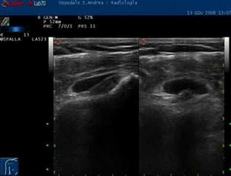 Osteocondrosi della colonna lombare durante la L3-S1