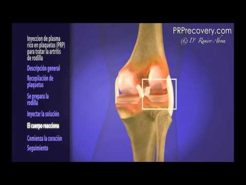 Articulaciones de la rodilla de un simulador para elegir