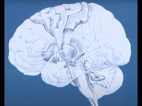 Tinnitus and Brain Tumors