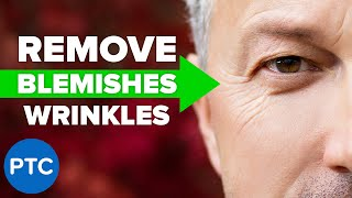 How To Remove Wrinkles and Blemishes in Photoshop [MUST-KNOW Techniques]
