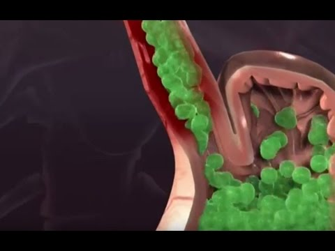 Клиника паразитов у человека
