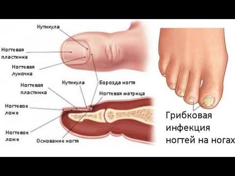 Die Salbe von gribka auf der Haut beim Menschen