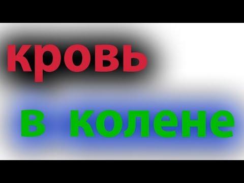 Кровь в колене. Гемартроз. Повреждение сустава#малиновский