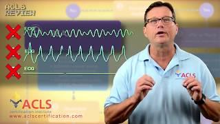 ACLS Adult Cardiac Arrest Algorithm - PEA/Asystole