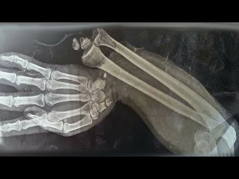 A Boy Ate 150 Gummy Vitamins For Breakfast. This Is What Happened To His Bones. Mp3