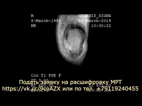 Расшифровка МРТ коленного  сустава показала умеренный синовит
