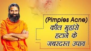 कील – मुहांसे (Pimples,Acne) हटाने के जबरदस्त उपाय   Swami Ramdev