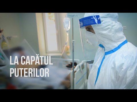 Metodă de aplicare a cremei de la varicoză