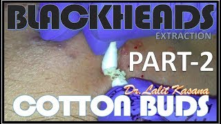 BLACKHEAD EXTRACTION WITH COTTON BUDS PART - 2