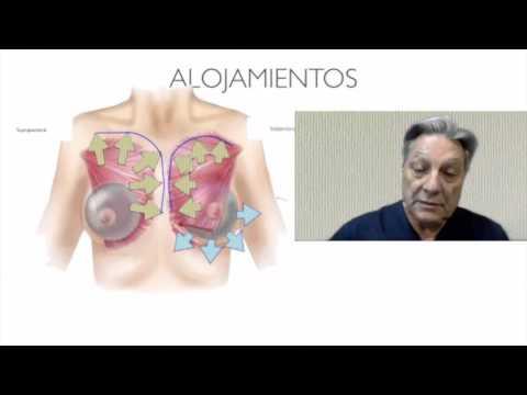 Implant los pechos siente al palpar fuerte