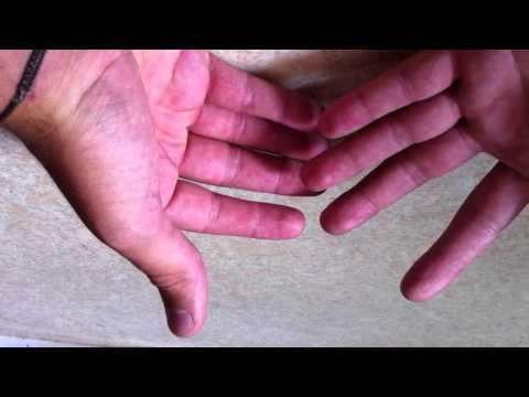 Les symptômes du psoriasis sur les doigts