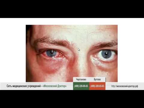 Отеки под глазами причина лечение фото