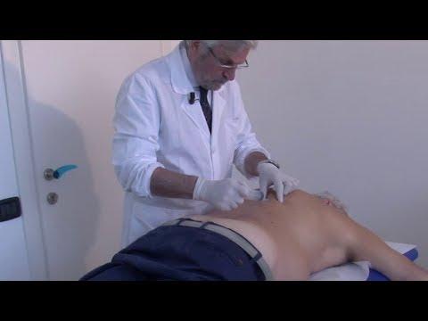 Organi bersaglio per crisi ipertensiva