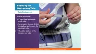 Feeding Tube Skills: Replacing the Gastrostomy Tube