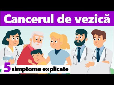 Dureri articulare medicamente
