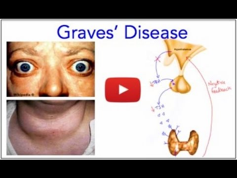 Video ✔ Graves' Disease - Hyperthyroidism - Everything You Need to Know - MADE EASY