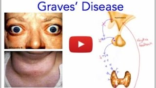 Graves' Disease - Hyperthyroidism - Everything You Need to Know - MADE EASY