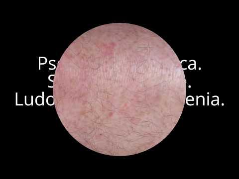 Leczenie łuszczycy neurodermitis