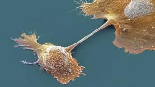 Как развивается рак?