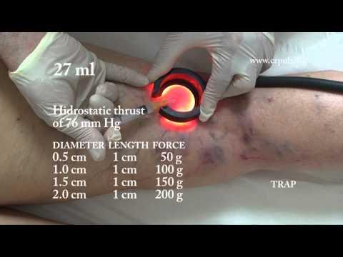 Come eliminare thrombophlebitis