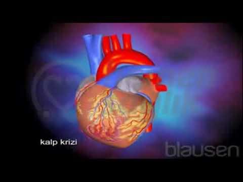 30  Miyokard Enfarktüsü