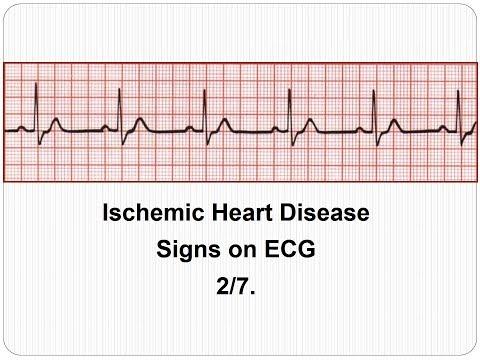 Könyv a magas vérnyomásról 120 80