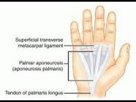 La espalda ejercicios con osteocondrosis