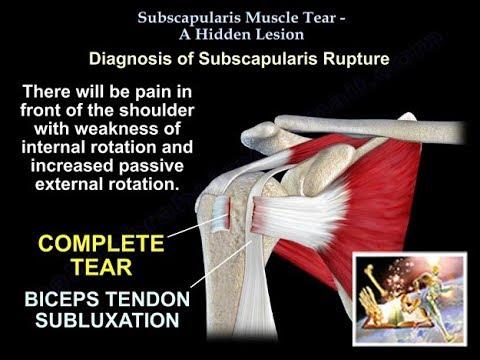 Articulația umflată după rănire