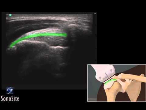 Tachicardia con osteocondrosi cervicale e toracico osteocondrosi