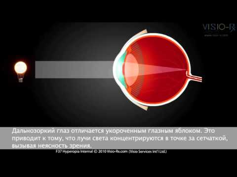 Глаукома без повышения внутриглазного давления