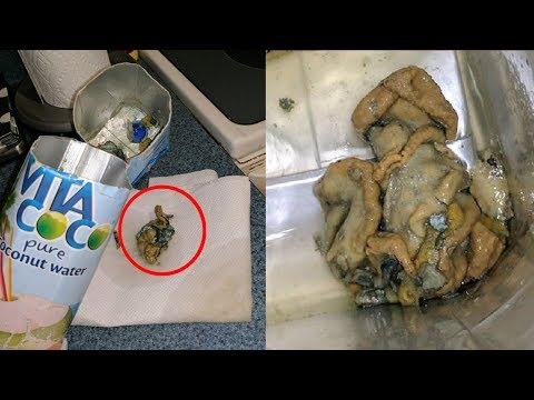 5 Grossest Things People Found In Their Food