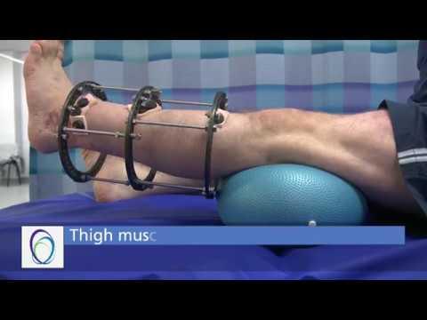Tratamentul bolii artritei la genunchi