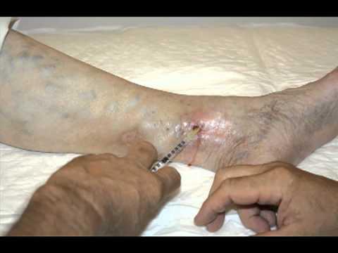 Controindicazioni a trattamento di varicosity il laser